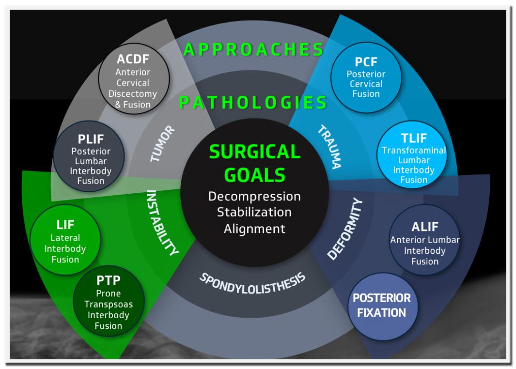 Prudentbiotech.com ~Alphatec Approaches to Spinal Surgery